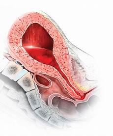 Postpartum Hemorrhage Stop Using Rectal Misoprostol For The Treatment Of