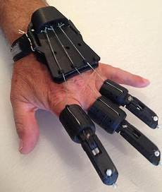 3d Printed Prosthetic Hand Design Hand Up 3d Printed Prosthetic Project 3d Printing Industry