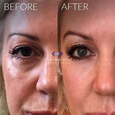 juvederm recovery creativmakeup co