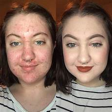 how to cover acne with makeup stylecaster