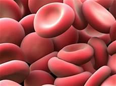 Polycythemia Rubra Vera Polycythemia Vera Osler Vaquez Disease Erythremia