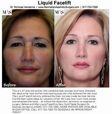 cosmetic surgery nyc archives manhattan aesthetic surgery