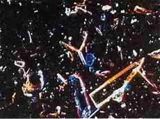 Polarised Light Microscopy Asbestos Optimum Adjustments Amp Uses Of Infra Red Visible Light