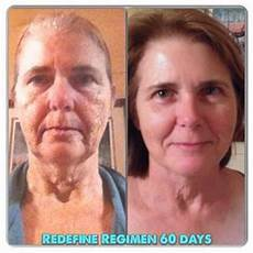 17 best images about redefine before after gallery of