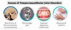 Temporomandibular Joint Disorders Causes Symptoms