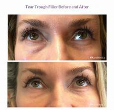 filler for before and after utah aesthetica