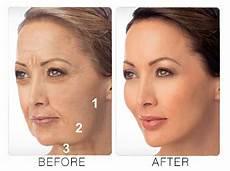 liquid facelift ideal skin medspa
