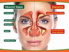 Sinus Anatomy Dr Ananda Sinusitis