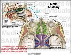 Sinus Anatomy Medivisuals Sinus Anatomy Medical Illustration