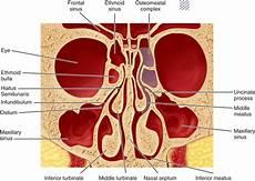 Sinus Anatomy Posterior Maxilla Complications Pocket Dentistry