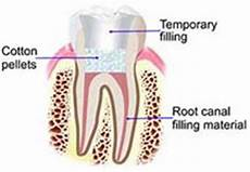 Root Canal Filling Material Root Canals Tammy Kussman Dds