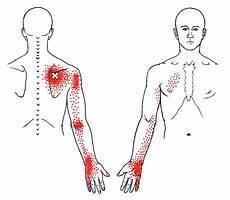 Arm Diagnosis Chart Serratus Posterior Superior The Trigger Point Amp Referred