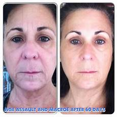 168 best images about rodan fields before after