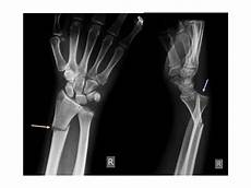 Galeazzi Fracture Chapter 2 Dr Vivek Pandey