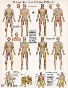 Visceral Referral Chart Sclerotome Visceral Referral Poster Clinical