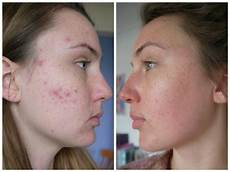roaccutane how controversial acne linked to