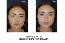 non surgical nose rhinoplasty in 111 harley st