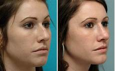 rhinoplasty before after photos annapolis md nose