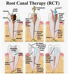 Root Canal Filling Material Root Canal Treatment News Dentagama