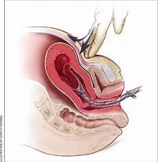 Postpartum Hemorrhage Postpartum Hemorrhage Prevention And Treatment American