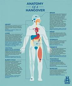 Dehydration Headache Location Chart Anatomy Of A Hangover Hangover Heaven Las Vegas Iv