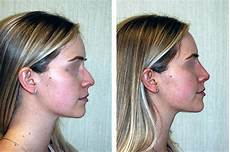 non surgical nose new york non surgical rhinoplasty