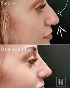 non surgical nose v rhinoplasty before after