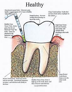 Gum Chart Periodontal Charting Wikipedia