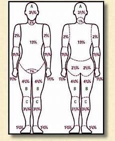 Burn Chart Body Severity Of Burns