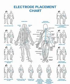 Electrode Placement For Electrical Stimulation Chart Electrode Placement Chart Esa Medical