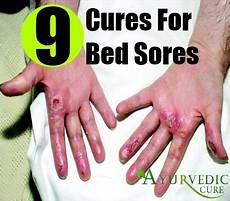best and effective ways to cure bed sores naturally