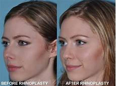 rhinoplasty before and after richard zoumalan