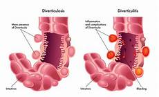 diverticulitis diet smart food choices keep the at