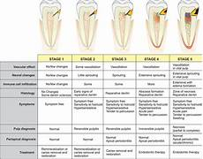 Referred Tooth Chart Best Picture Of Chart Anyimage Org