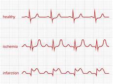 How To Read Cardiogram Chart Heart Cardiogram Vector Charts Set Healthy Heart Stock
