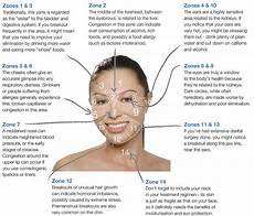 Chinese Acne Face Chart Different Types Of Acne And How To Treat It Her Campus