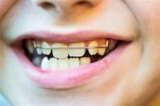 apparecchio mobile come si raddrizzano i denti roberto perasso