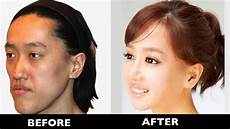 15 korean plastic surgery before after photos