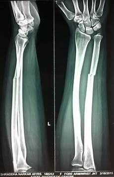 Galeazzi Fracture Distal Radial Ulnar Joint Druj Injuries Trauma