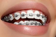 Brackets For Braces Best New Tools For Clean Braces Klement Family Dental