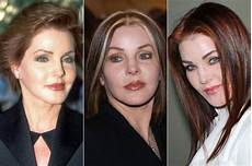 plastic surgery before after 56 pics