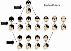 Hair Loss 101 Bauman Medical Group