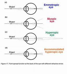 Refractive Error Chart Refractive Errors Ametropia