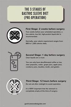 gastric sleeve diet guide infographics gastric sleeve