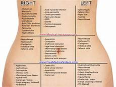 Back Diagnosis Chart Abdominal Chart Differential Diagnosis Based On Location