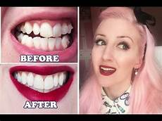 invisalign before after my experience