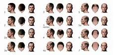 Pattern Bladness Hair Loss In Men