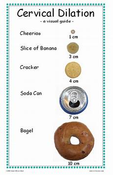 Centimeters Dilated Chart Baby Jackson May 2011
