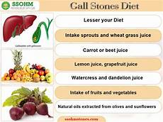 more about gallbladder stones by dr r k aggarwal