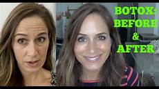 botox best before after